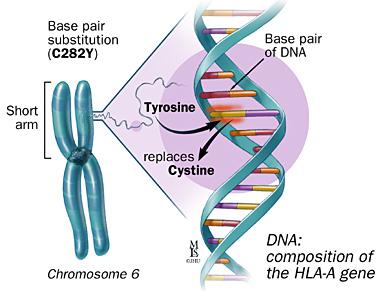 HH C282Y Gene Variation