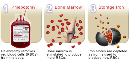 Phlebotomy reduces iron stores